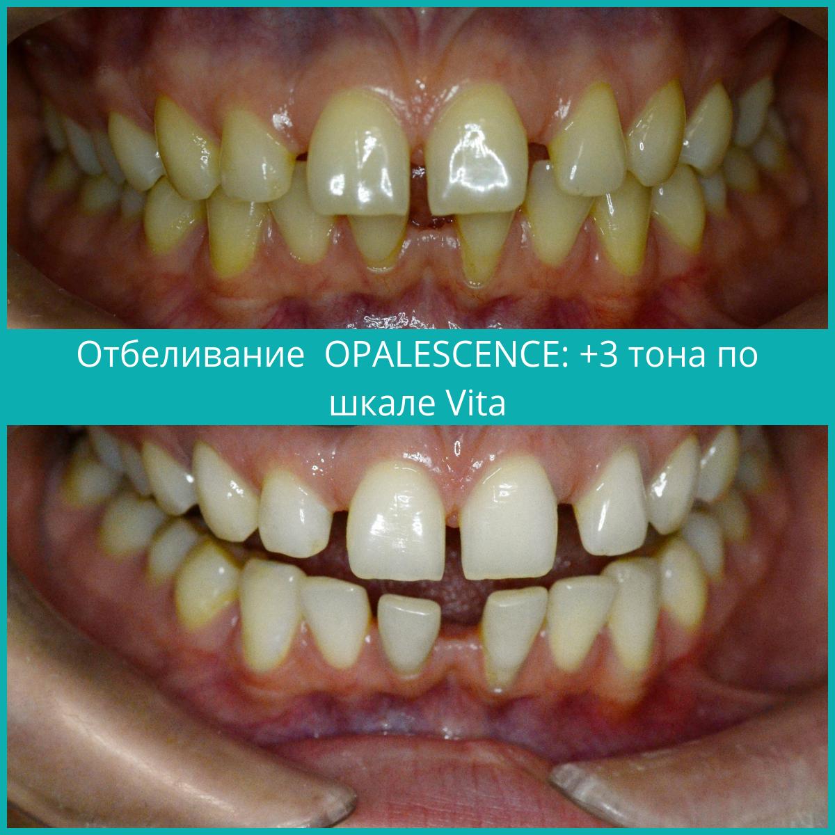 Отбеливание-Opalscence.png
